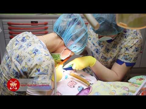 Стоматологічне лікування дітей при наркозі (загальномузнечуленні)