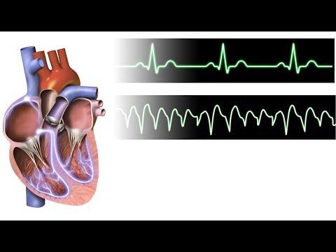 Otra medición de la presión arterial