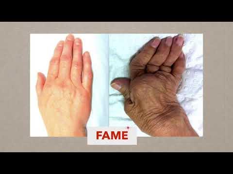 Tratamentul artritei artritei cu gelatină