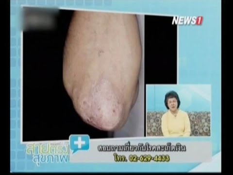 Suprastinum จาก neurodermatitis