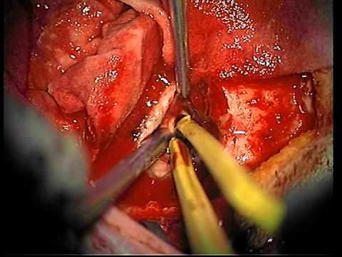 Medios para el tratamiento rápido de prostatitis