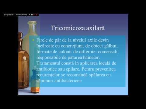 Que es el papiloma virus sintomas