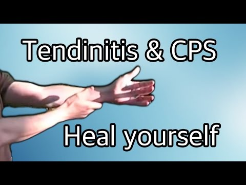 Video exercises for tendinitis (tendonitis) and carpal tunnel (cps)