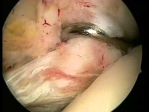 Spasmi vascolari del trattamento della colonna vertebrale cervicale