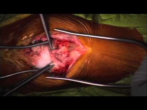 Removal of Benign Patella Lesion