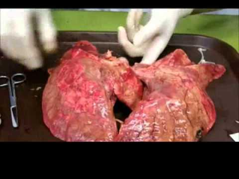 Επιπτώσεις του καπνίσματος στους πνεύμονες ενός καπνιστή