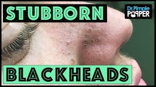 Blackhead Extractions in a Teenager with Acne