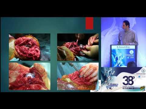 Σινωπίδης Χ. - Ολική αρθροπλαστική αγκώνα σε οστεοπορωτικά κατάγματα