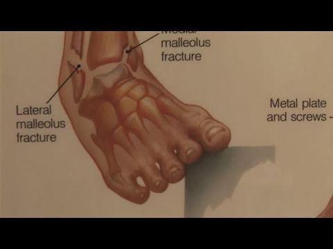 Massage mit Knöchelverletzung