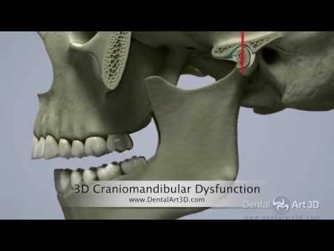 Operationen an der Halswirbelsäule