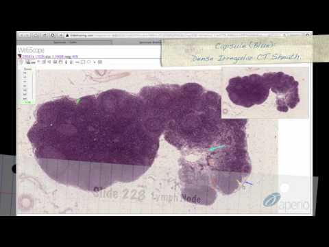 Продолжительность жизни при раке предстательной железе