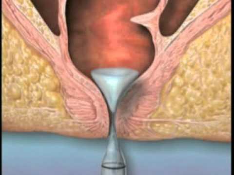 Ktoś jak pozbyć się hemoroidów wewnętrznych