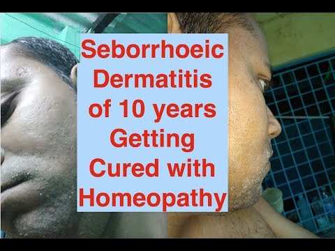 Seborrhoeic Dermatitis from 10 years getting almost cured