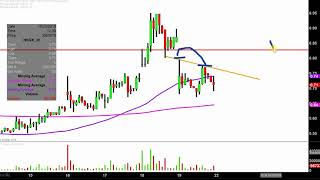 Histogenics Corporation - HSGX Stock Chart Technical Analysis for 10-19-18