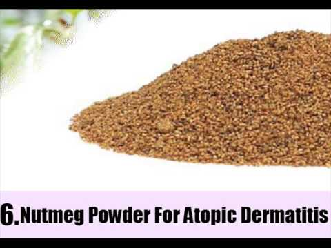 Video 11 Natural Treatments For Atopic Dermatitis