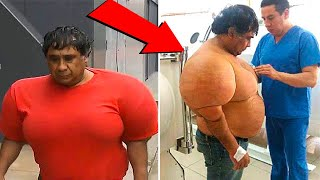 THIS MAN'S BODY TURNED INTO BALOON AFTER A RAPID RISE FROM THE DEEP