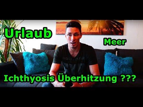 Atopitscheski kratzt sich die Hautentzündung der ganze Körper