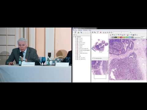 Центры лечение гепатита с в москве