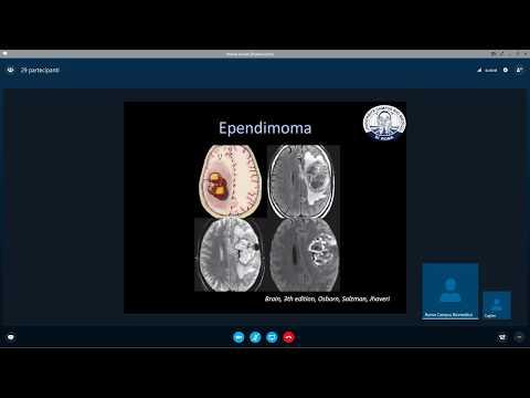Lo spostamento dei dischi intervertebrali dei sintomi della colonna cervicale