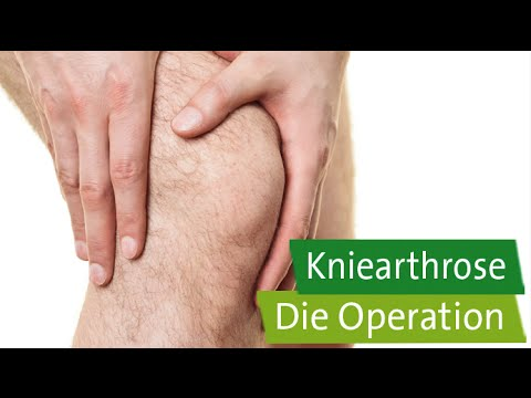 Reiben für Osteoarthritis des Knies
