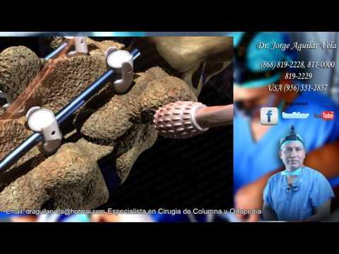 Tratamiento de osteocondrosis articulación de la cadera