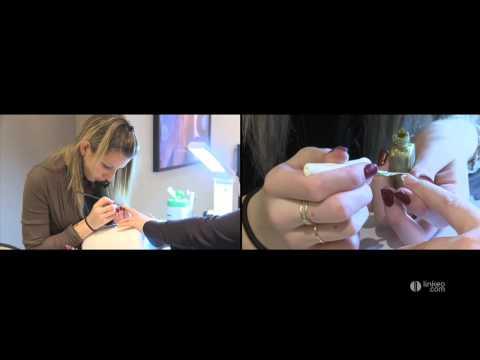 Sloenie des ongles à bras le traitement avec lhuile dolive et le citron