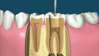 Лечение зубов - операция по лечению корней зуба