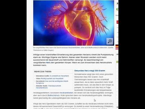 Blutdruck bei Kindern über 16 Jahren Tisch