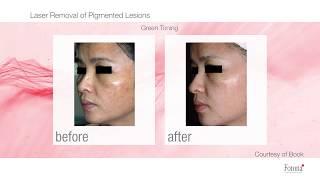 Laser Fotona - odstranění pigmentových skvrn