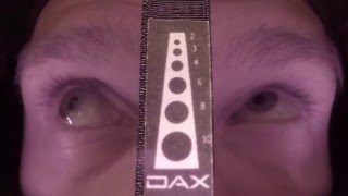DAX™ Field Video 002 - Duane Syndrome