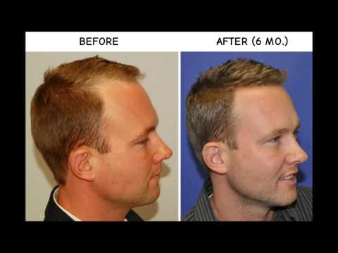 BEFORE & AFTER Hair Transplant Using ARTAS Robot for FUE
