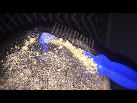 Scratching Dandruff | Satisfying Irritated Scalp scratching | ASMR Dandruff