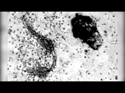 Soda paggamot ng prostatitis gota, kanser sa diyabetis ubo mula sa parasites at worms sa isang bagon