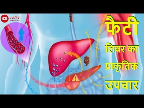 Video फैटी लिवर के लक्षण और घरेलू उपचार | Fatty liver Symptoms & Home Remedy in Hindi