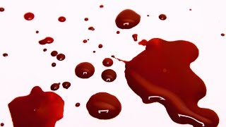 Does Atonement for Sin Require Shedding of Blood?