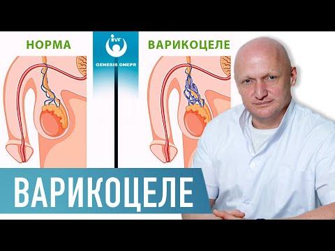 Варикоцеле у мужчин. Опасности, диагностика и лечение. Операция Мармара |  Хирург Щевцов  А.Н.