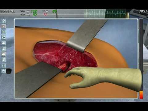 Ultraschallbild des Synovitis des Kniegelenks