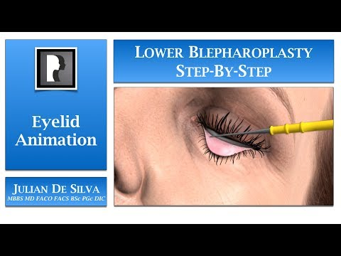 Blepharoplasty Animation – How is Lower Blepharoplasty/ Eyelid Surgery completed?