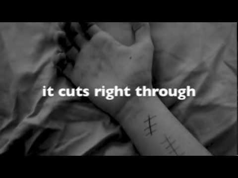 Scars by Colton Dixon