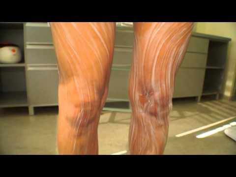 Subq riebalų deginimo šalutinis poveikis