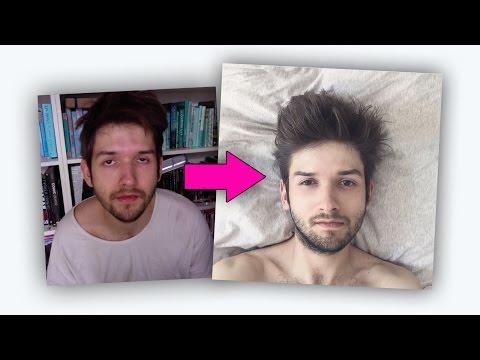 Die Pigmentflecke vom Hineinwachsen des Haares