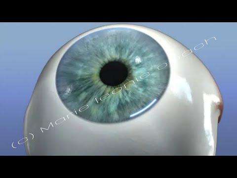 Aberații ale defectelor vizuale