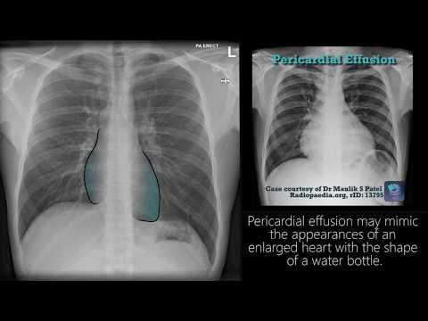 Radiograph Tutorial: Chest X-ray / CXR | Radiology Nation - YouTube