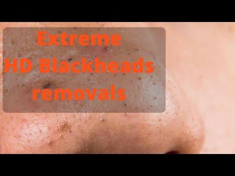 Dr. Davin Lim: HD Blackhead Extraction