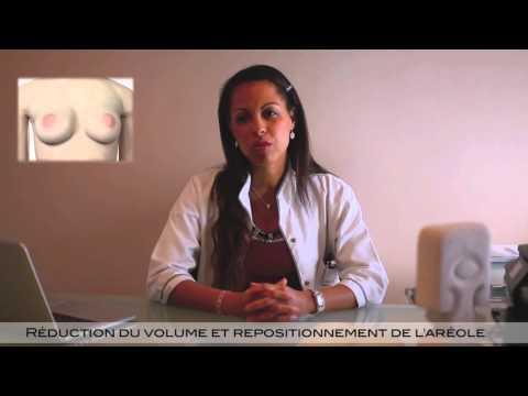 La réhabilitation après lopération du cancer de la poitrine