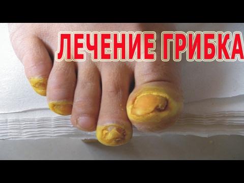 Als das Bad von gribka der Nägel zu reinigen