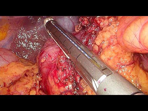 Laparoskopowa gastrektomia z limfadenektomią D2 - kluczowe etapy operacji