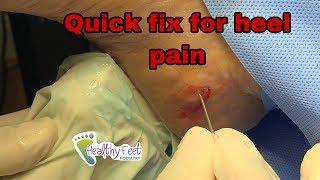 Quick Fix For Heel Pain, Heel Spur, Plantar Fasciitis
