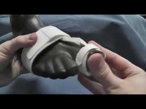 Наколенник коленного сустава фото