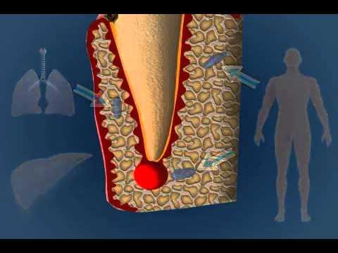 Röntgenzeichen der Halswirbelsäule Instabilität
